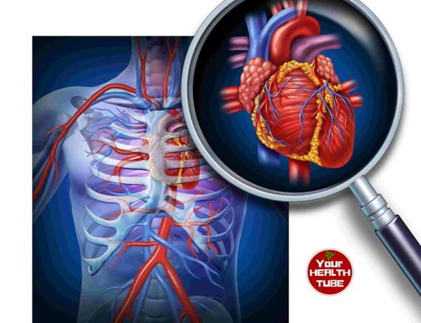 Cardiovascular Disease Symptoms