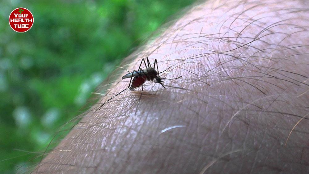 Infected mosquito bites