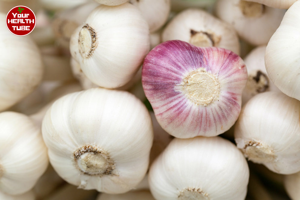 Uses and Benefits of Garlic